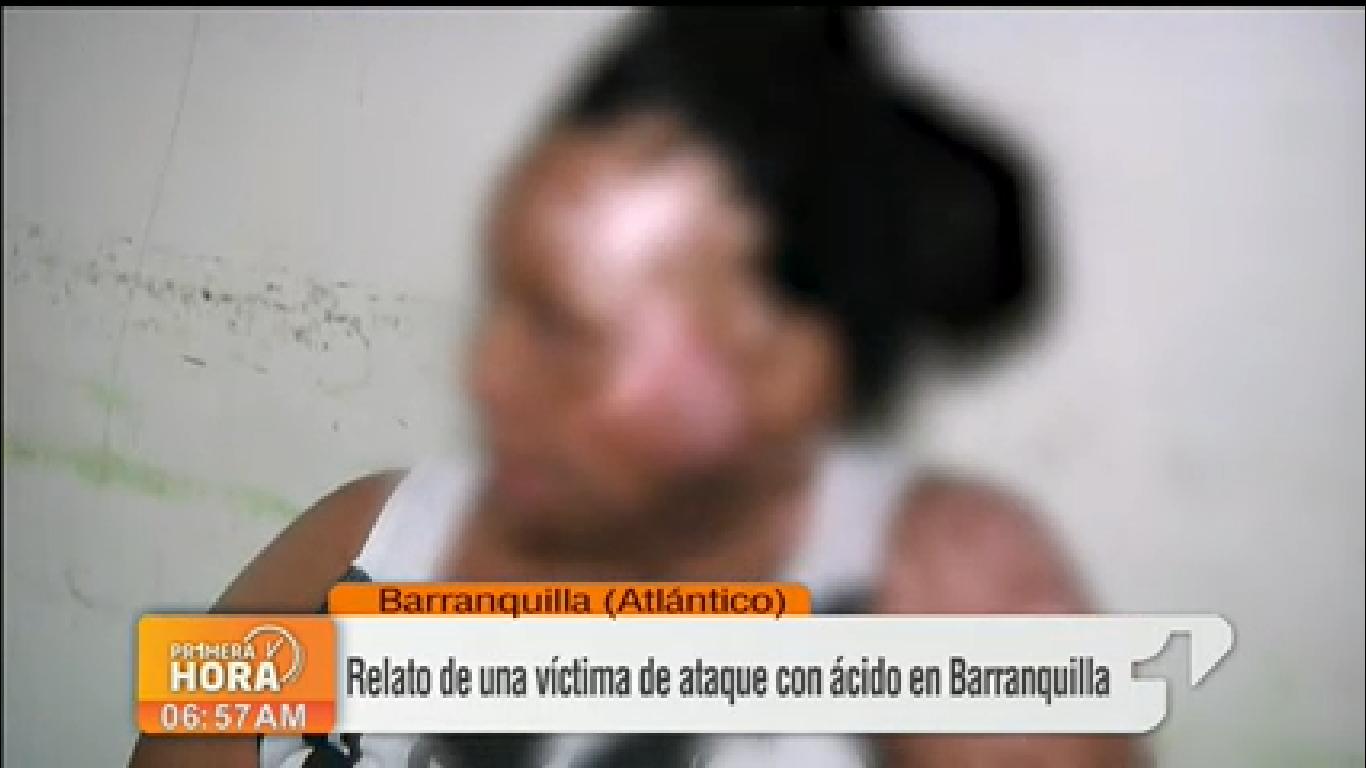 """""""Me quemó para que no fuera de nadie más"""", mujer quemada con ácido"""