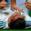 Así le quedó la cara a Cristiano Ronaldo - Foto: OSCAR DEL POZO / AFP
