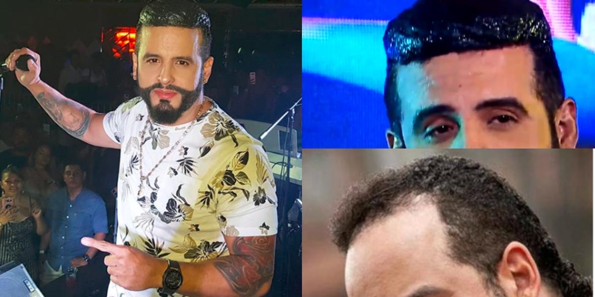 Nelson Velásquez responde a críticas por su extraño look