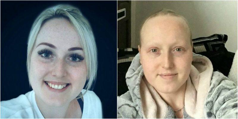 NOTICIAS: Se sometió a tratamientos para cáncer, el diagnóstico fue erróneo