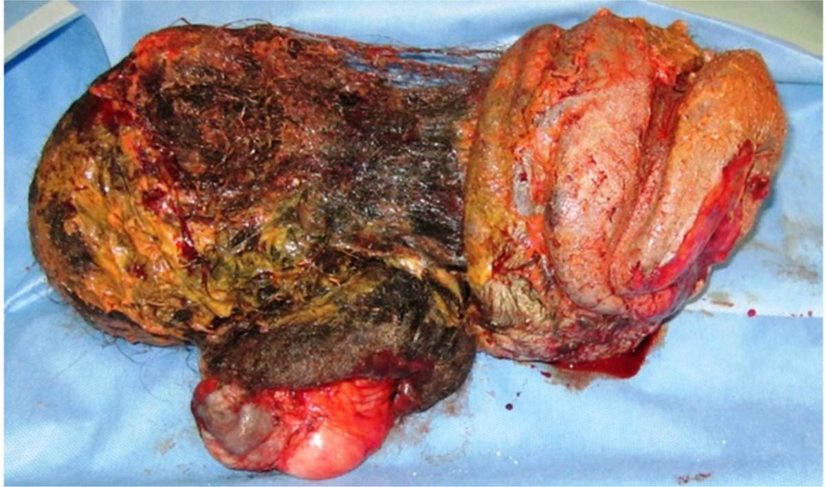 fetus in fetu mujer 17 años gemelo 2