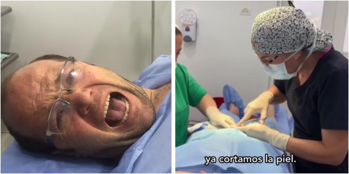daniel samper vasectomía mitos video cirugia