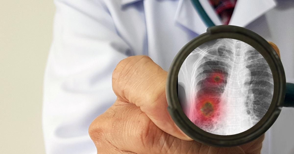 Colombianos: así hay que protegerse del nuevo virus mortal que alerta al mundo