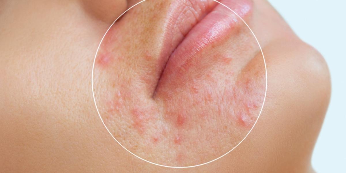 El uso prolongado del tapabocas puede causar acné, pero así lo evitas