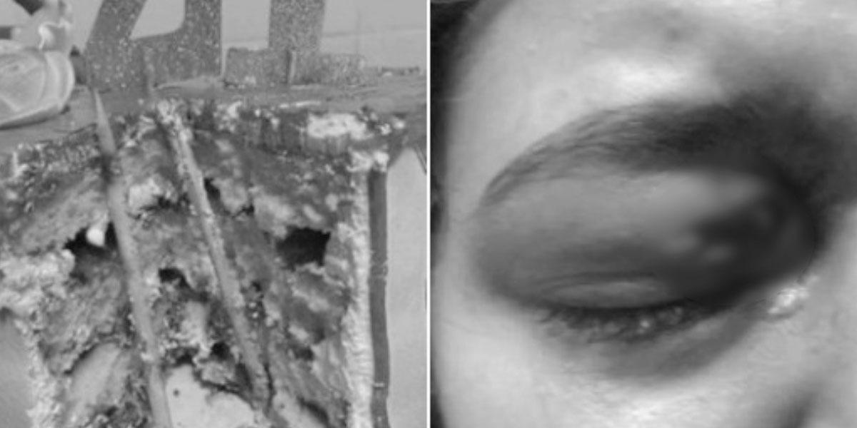 Mujer casi pierde un ojo por un pastel de cumpleaños