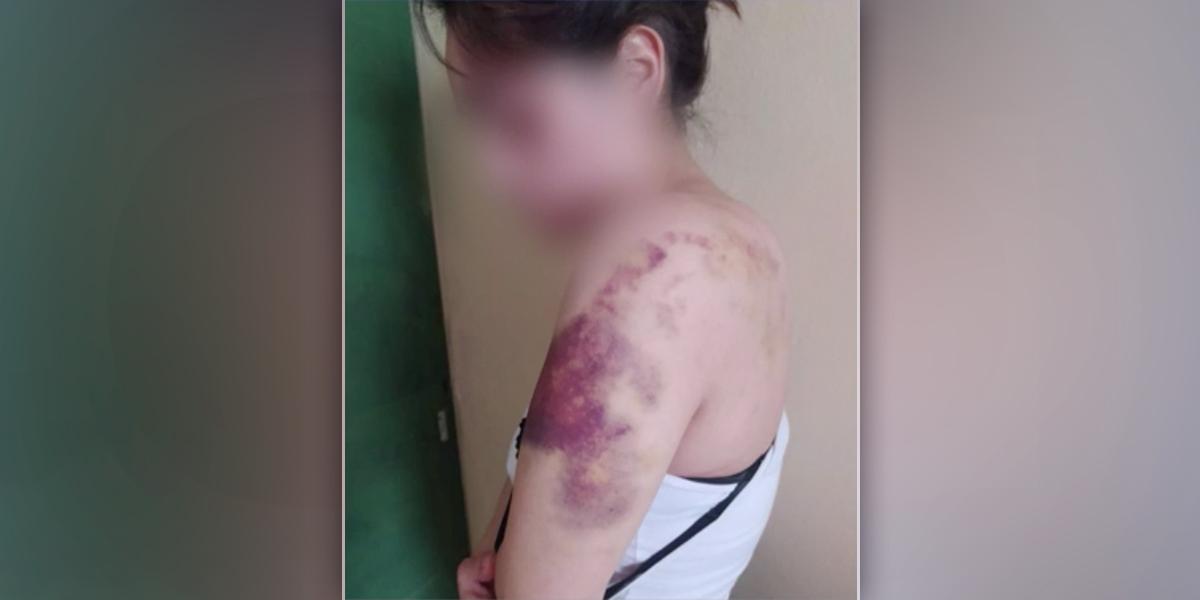 Mujer brutal golpiza expareja sentimental Bogotá