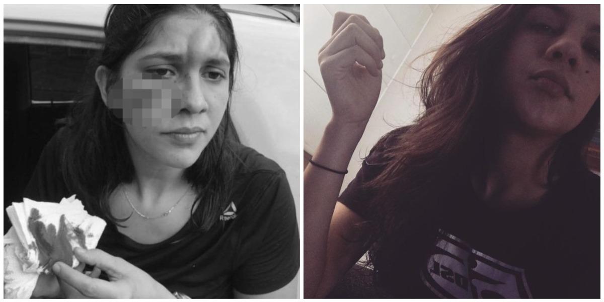 Diana Carreño, joven de 27 años, denunció que fue víctima de una brutal agresión