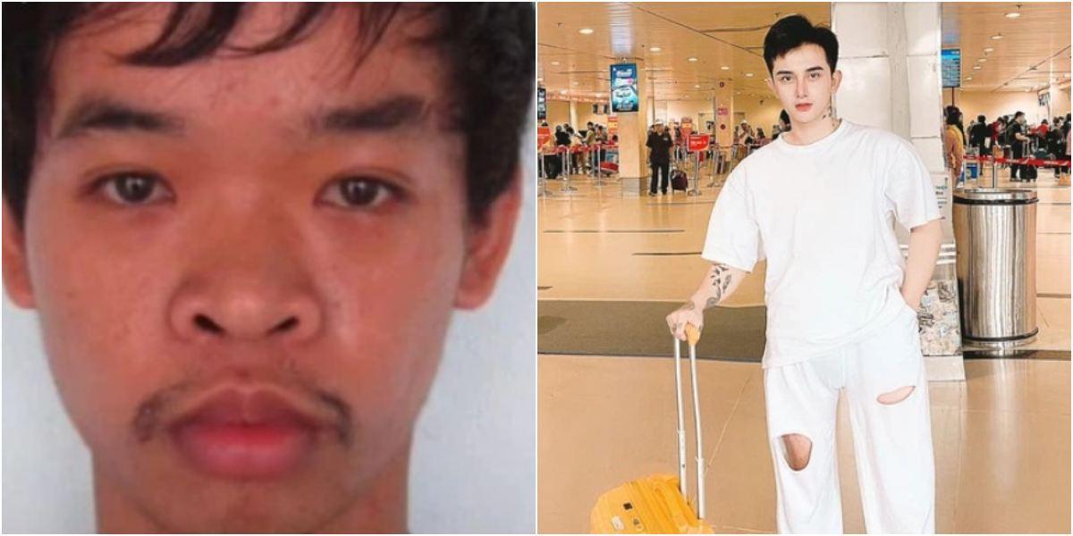 Joven vietnamita se operó nueve veces la cara para quedar bello