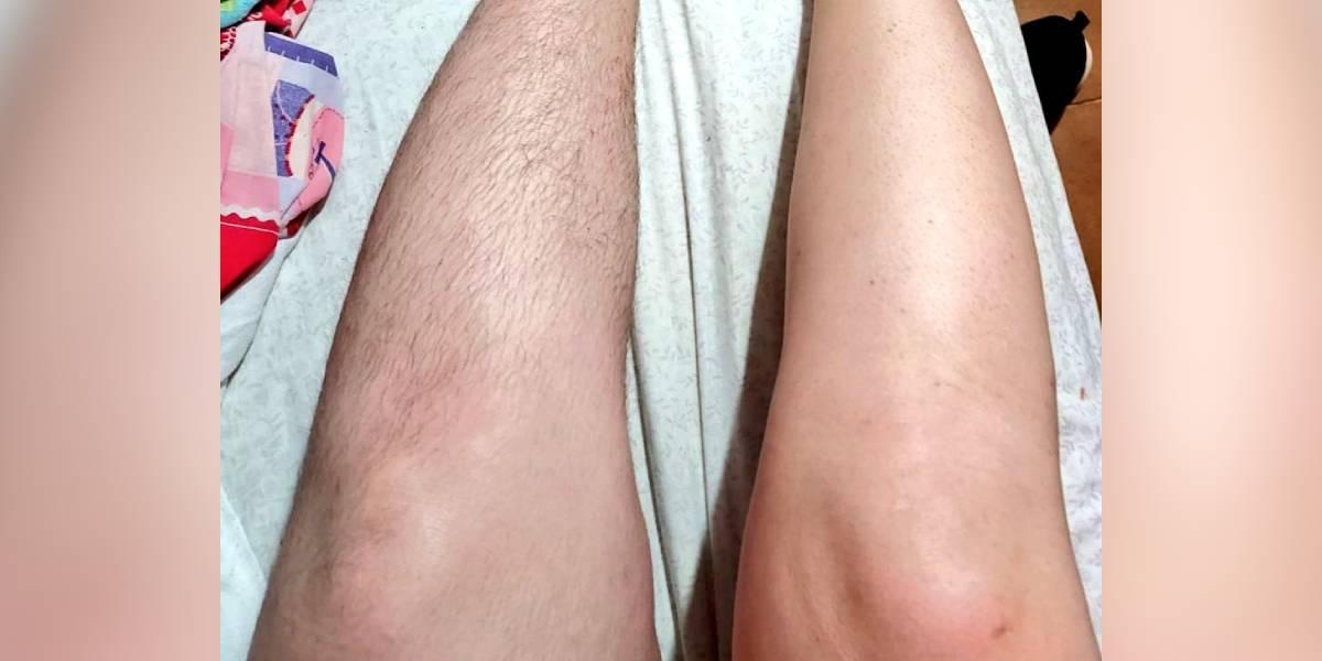 mujer piernas depiladas depilacion