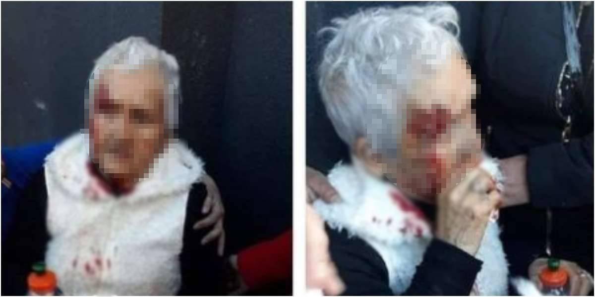 noticia falsa no golparon anciana paro nacional protestas