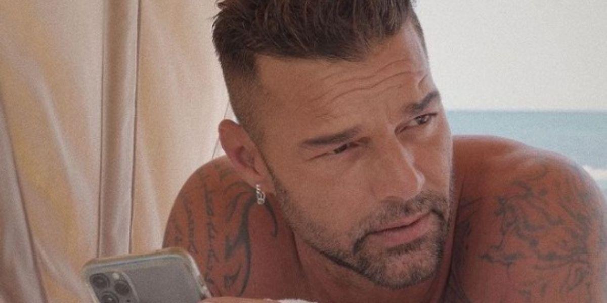 Ricky Martin cambio rostro cara quirófano